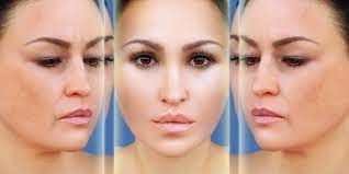 Combination Treatment in Aesthetics; Designed to Improve the Physical Appearance