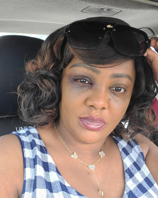 This does not look like an accident- Fans slams Actress Helen Paul over her Bruised face as she disclosed she was involved in an accident in Abuja