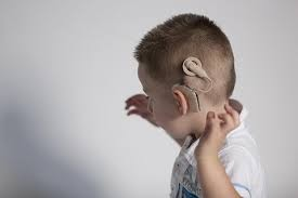 Cochlear Implants: Tiny Electronic Devices Stimulate Cochlear Nerve for Effective Management of Hearing Loss