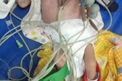 Haykal, Bayi Mungil Penderita Jantung Bocor Butuh Uluran Tangan Dermawan