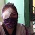 Tras secuestro y agresión por cocaleros informales enfermera pierde la visión