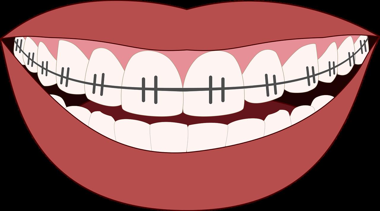 Dental Implants in New Jersey