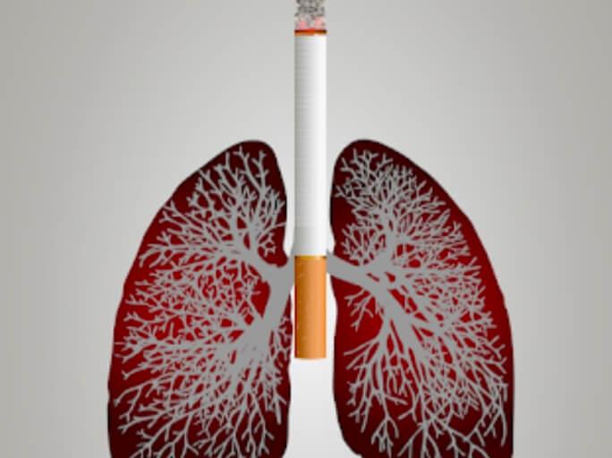 Ketagihan Akibat Nikotin - Kesan Pada Kesihatan Manusia