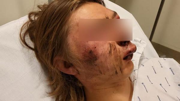 [VIDEO] Agression raciste en Belgique : Ethan, 15 ans, tabassé par cinq Tchétchènes parce qu'il sortait avec une fille de leur communauté