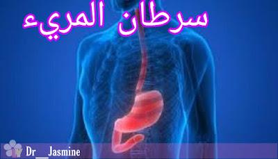 سرطان المريء أعراضه و العلاج منه  (Esophageal cancer)