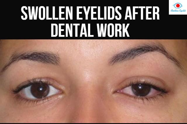 swollen-eyelids-afer-dental-work