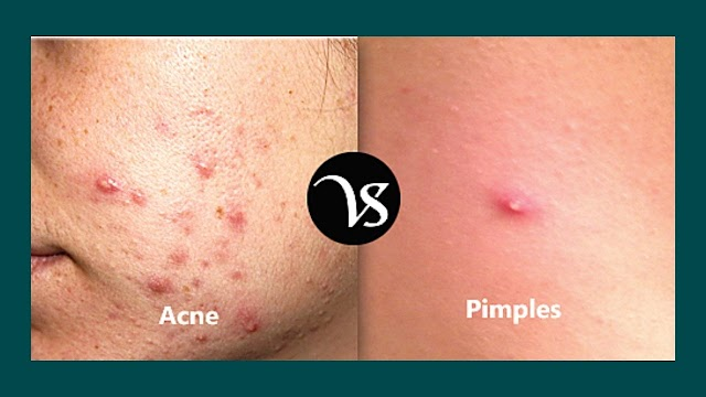 Acne vs Pimples | The Acne Causes of and Types 2021