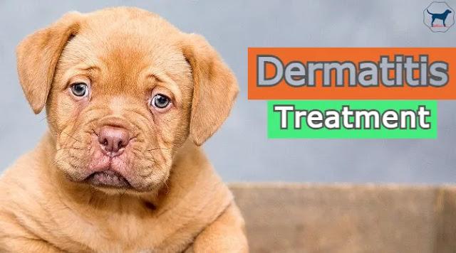 dermatitis-treatment-at-home