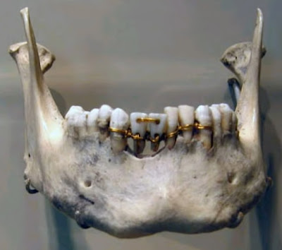 Egyptian dentists fix teeth in place with gold thread skull