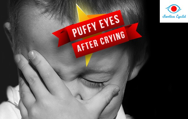 puffy-eyes-after-crying
