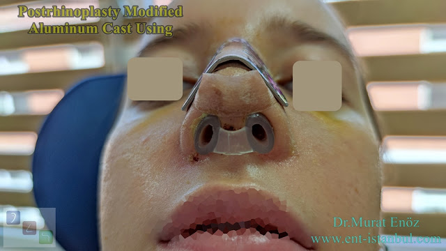 Modified Aluminum Cast, Postrhinoplasty Cast Using,Effect of postrhinoplasty taping on swelling in patients with thick skinned nose,Nostril Retainer,