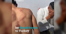 Illegal migrants claim to have been beaten by Greek forces who did not allow them to move freely into Europe