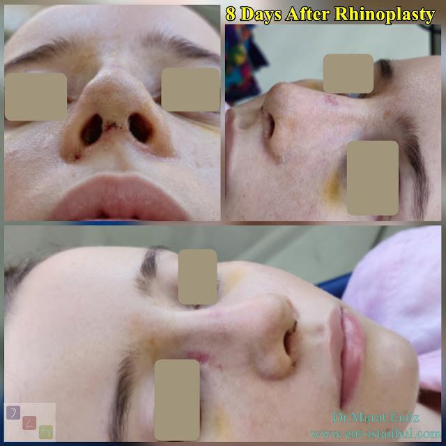 Rhinoplasty in women istanbul