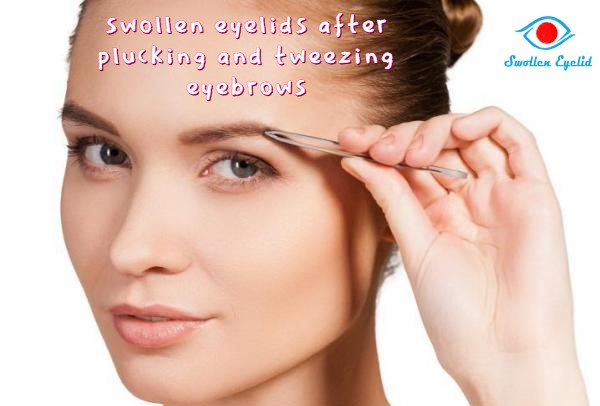 swollen-eyelids-after-plucking-and-tweezing-eyebrows