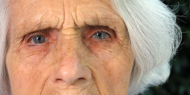 SALUD. La demencia dificulta la detección del dolor en los residentes de hogares de ancianos