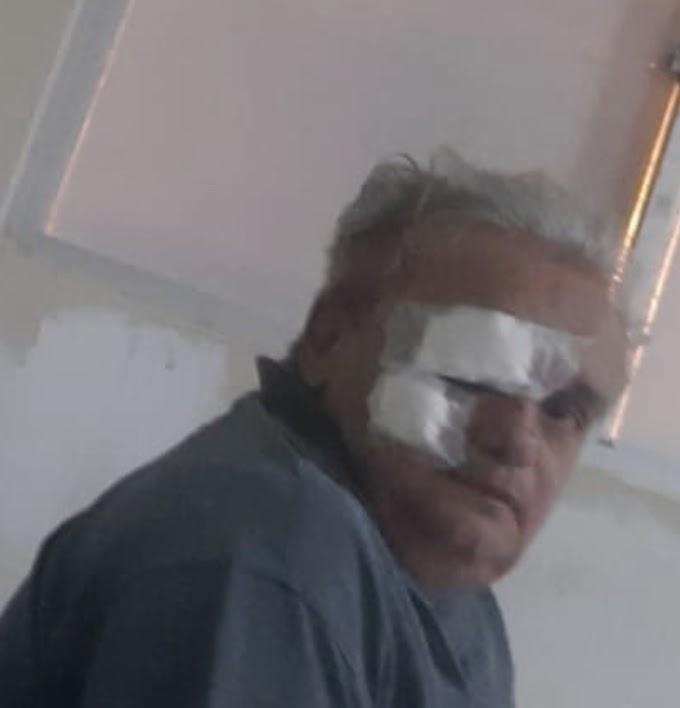 Embriagado, motoqueiro invade contramão e bate em moto do Radialista e Repórter Policial de Cajazeiras Júnior Soares