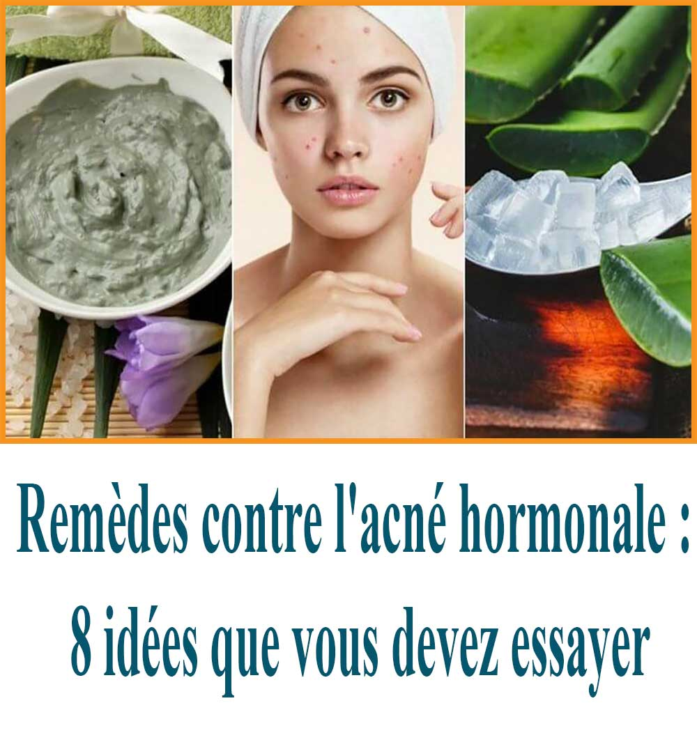 Remèdes contre l'acné hormonale : 8 idées que vous devez essayer
