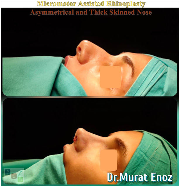 nose job,Natural rhinoplasty in Istanbul,Natural looking nasal aesthetic surgery,nose reshaping,