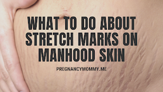 What to Do About Stretch Marks on Manhood Skin