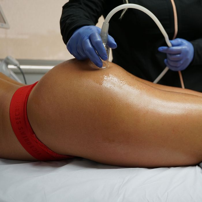 Everything to Know About Vacuum Therapy