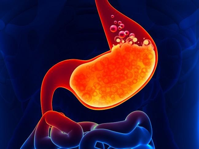 Proton Pump Inhibitors Decrease Amount of Acid in Stomach to Treat Certain Stomach and Esophagus Problems