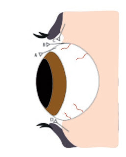 Injection sites in eye