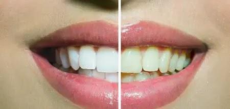 Teeth whitening using nature