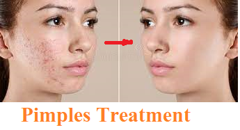 Acne: Causes, treatment, and tips, Top Best Homeopathic medicine