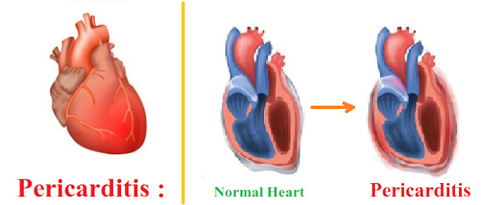 Pericarditis - Symptoms, Causes and Homeopathic treatment