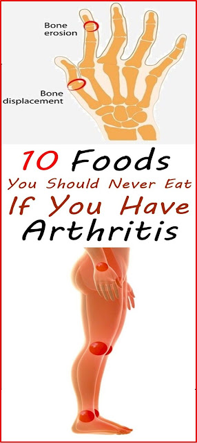 10 Foods To Avoid If You Have Arthritis