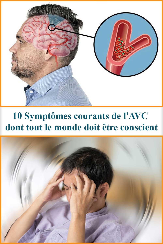 10 Symptômes courants de l'AVC dont tout le monde doit être conscient