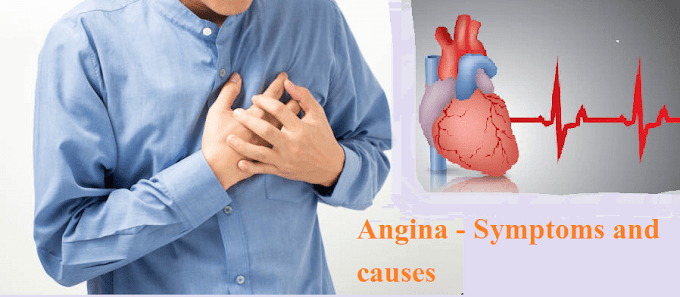 Angina - Symptoms, Causes and Homeopathic Medicines for its treatment