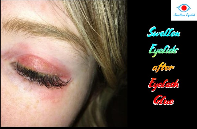 swollen-eyelids-after-eyelash-glue
