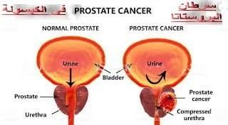 التهابات البروستاتا الأعراض والأسباب
