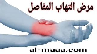 التهاب المفاصل - الأسباب والأعراض والعلاج بالتفصيل