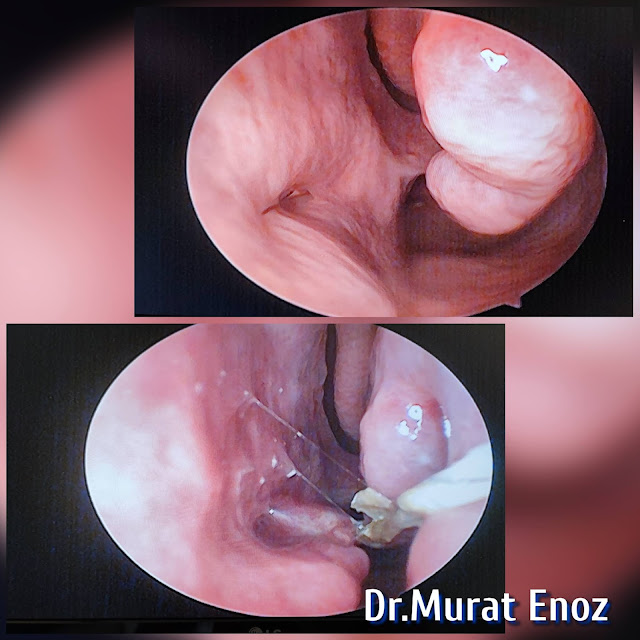 Cartilage Implanting To The Inferior Meatus For Nasal Hyperventilation - Inferior Meatus Augmentation With Rib Cartilage Procedure