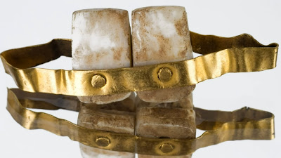Ancient teeth held together with gold bands