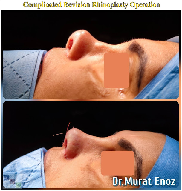 Revision rhinoplasty using rib cartilage,Secondary rhinoplasty,revision nose aesthetic surgery,Revision nose job in Istanbul