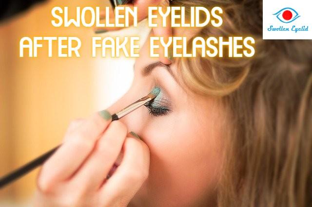 swollen-eyelids-after-fake-eyelashes