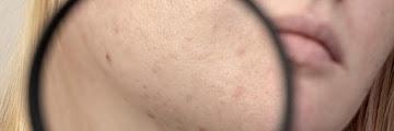 Kandungan Dalam Skincare yang Ampuh Menghilangkan Flek Hitam