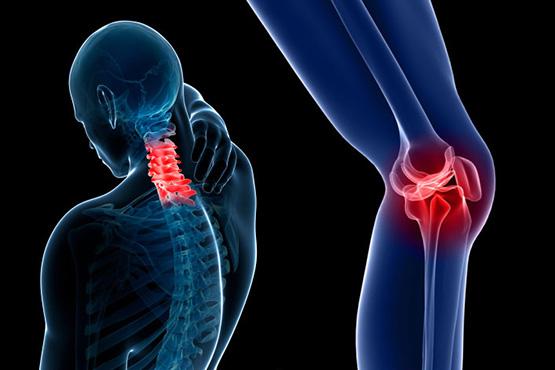 La osteoartritis en Latinoamérica.