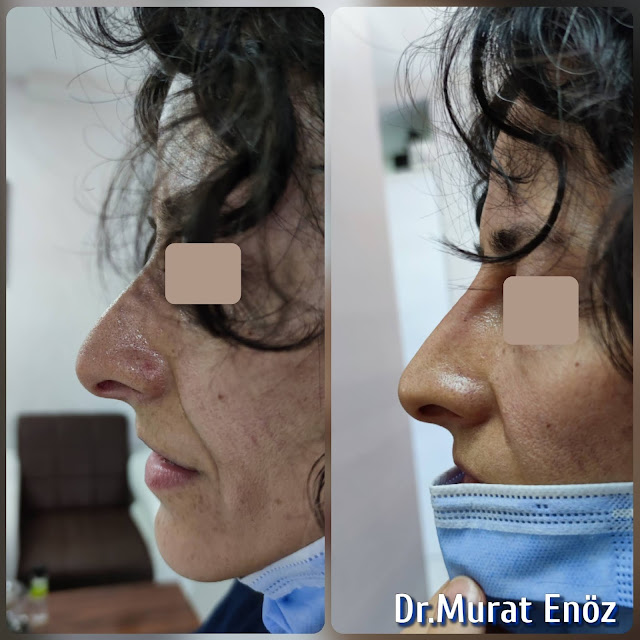 5 Minutes Nose Job With Filler in Istanbul, Non surgical liquid rhinoplasty