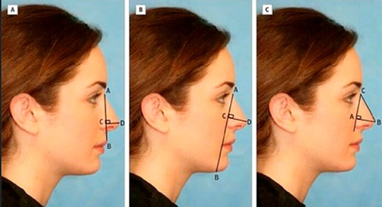 And yet, the concept of the ideal shape of the nose remains a big question.
