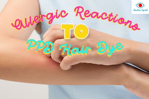 allergic-reactions-to-ppd-hair-dye