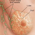 Breast Cancer - symptoms, prevention, and treatment