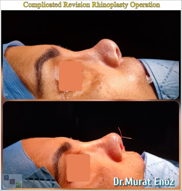 Revision rhinoplasty using rib cartilage,Secondary rhinoplasty,revision nose aesthetic surgery,Revision nose job in Istanbul,