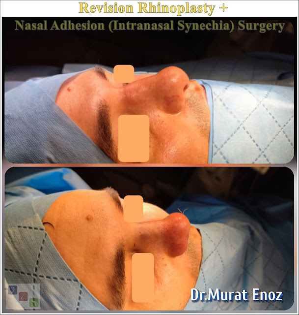 revision rhinoplasty + nasal adhesion removal surgery + septoplasty + nasal bone spur excision