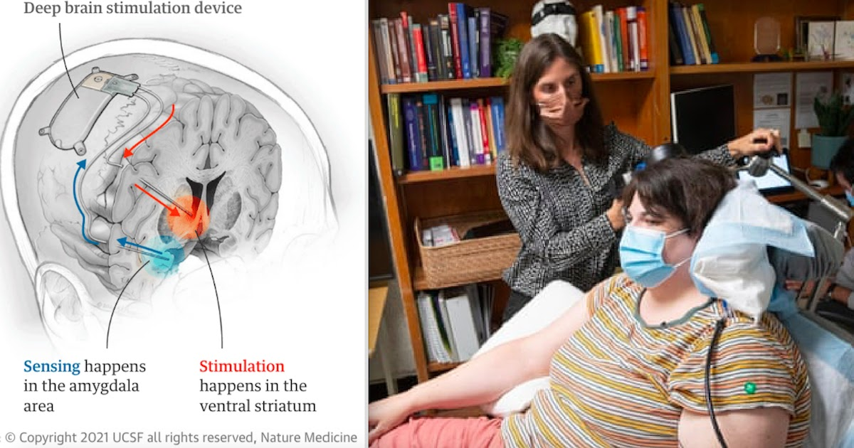 Depressed Woman Gets The 'Most Intensely Joyous Sensation' Following Treatment With Electrical Brain Implant