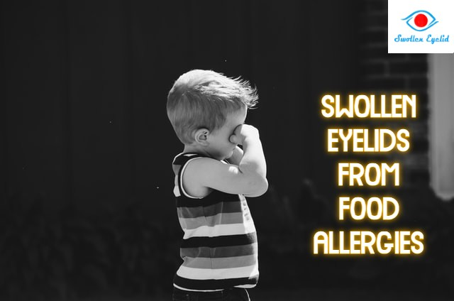 swollen-eyelids-from-food-allergies