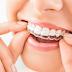 Niềng răng Tiếng anh là gì? Một số thuật ngữ nha khoa quan trọng nhất định phải biết